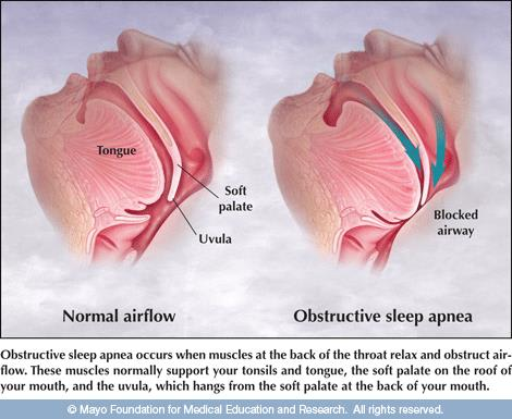 Sleep Apnea | Health Style Dental